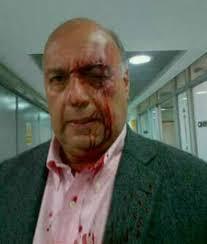 El diputado Julio Borges explicó en Noticias24 Radio que en el desarrollo de la sesión de la Asamblea Nacional fue víctima de agresión, al igual que el ... - 16wiliaj3-630
