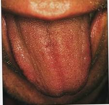 deviated tongue due to heart fire and liver wind