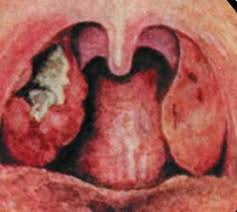 Image result for tonsillitis