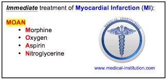 Image result for myocardial infarction symptoms