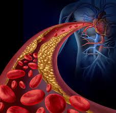 Resultado de imagem para dia mundial do colesterol