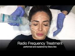 <b>Radio Frequency</b> Anti-Aging <b>Facial</b> Treatment -- Bye Wrinkles ...