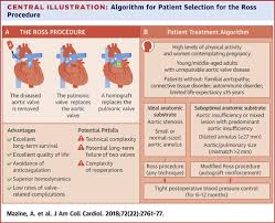 Ross Procedure in Adults for Cardiologists and Cardiac Surgeons ...
