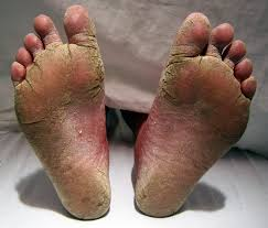 Ugly Feet Ailment - Athlete's Foot