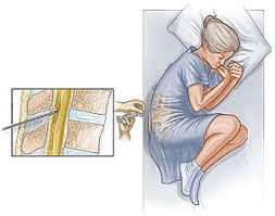 「髄液検査」の画像検索結果