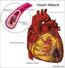 Pengobatan alternatif jantung bengkak