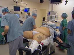 Image result for obesity patients