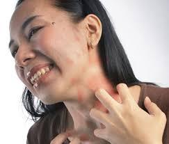 Cara Mengobati Alergi